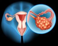 Diagramma del cancro ovarico dettagliatamente illustrazione vettoriale