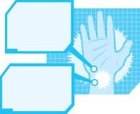 Diagramma di dolore della mano Fotografia Stock Libera da Diritti