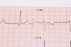 Diagramma di EKG Immagine Stock