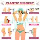 Diagramma di flusso ortogonale della chirurgia plastica illustrazione vettoriale