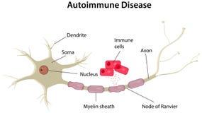 Diagramma di malattia autoimmune Fotografia Stock