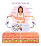 Diagramma grafico dell'illustrazione di vettore di procedura di PRP, schema di procedura di cosmetologia illustrazione di stock