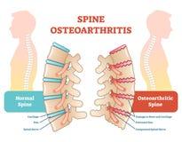 Diagramme anatomique d'illustration de vecteur d'ostéoarthrite d'épine Photos stock