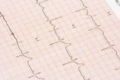 Diagramme d'électrocardiogramme Images libres de droits