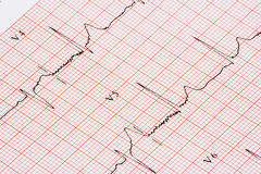 Diagramme d'EKG Photos stock