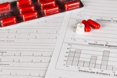 Diagramme d'EKG avec des pilules Image libre de droits