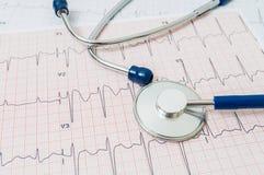 Diagramme et stéthoscope de l'électrocardiogramme/ECG Photos stock