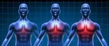 Diagramme médical de maladie de coeur Image libre de droits