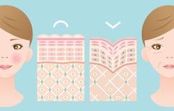 Diagrammes de jeune peau et de vieille peau illustration libre de droits