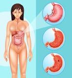 Diagramvisningkvinna och cancer i mage vektor illustrationer