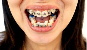 Diamond braces for teeth Stock Photography