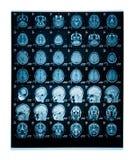 Diapositiva real del cerebro MRI de una mujer joven Fotografía de archivo libre de regalías