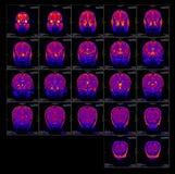 Diapositiva verdadera del cerebro MRI de una muchacha imagen de archivo