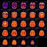 Diapositiva verdadera del cerebro MRI de una muchacha Foto de archivo