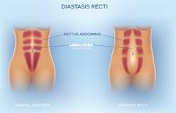 Diastasisrecti stock illustrationer