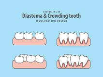 Diastema & Crowding tooth illustration vector on blue background Stock Photo