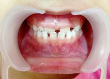 The diastema teeth on child. The diastema teeth in child check-up by the dentist royalty free stock photography