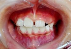 The diastema teeth on child. The diastema teeth in child check-up by the dentist stock photography
