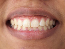 Diastema between the upper incisors Stock Photography