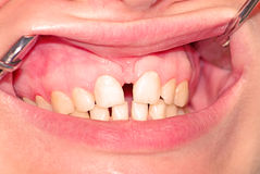 Diastema of the upper jaw Royalty Free Stock Photos