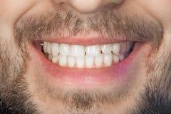 Dichte omhooggaand van de tandglimlach Het concept gezonde juiste mondelinge hygiëne stock foto's