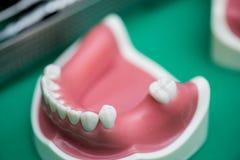 die Ausrüstung von Zahnheilkundesorgfalt Lizenzfreies Stockfoto