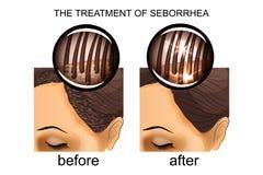 Die Behandlung von seborrhea der Kopfhaut Vorher und nachher vektor abbildung