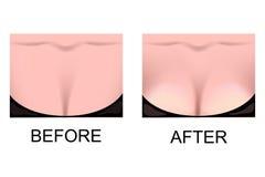 Die Brustvermehrung Fällige Frau über Weiß stock abbildung