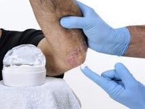 Die Dermatologenheilung ein erwachsener Mann, der unter Ellbogenpsoriasis leidet lizenzfreies stockfoto