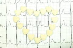 Die Ergebnisse der Elektrokardiographie Stockbild
