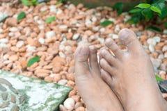 Die Füße des Gärtners Stockbilder