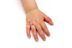 Die Hand der Kinder mit Hautkrankheit auf weißem Hintergrund Lizenzfreies Stockfoto