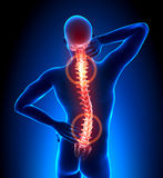 Mannesverletztes Rückgrat - Wirbel-Schmerz Lizenzfreies Stockfoto