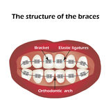 Die Struktur der Klammern orthodontie Infographics Vektorillustration auf lokalisiertem Hintergrund Stockfotos