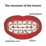 Die Struktur der Klammern orthodontie Infographics Vektorillustration auf lokalisiertem Hintergrund Stockfoto