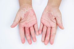 Die trockenen Hände, Schale, Kontaktdermatitis, Mykosen, Haut inf Lizenzfreie Stockfotos