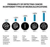 Die Wahrscheinlichkeit der Entdeckung des Brustkrebses mit verschiedenen Arten von microcalcinates mammographie Infographics lizenzfreie abbildung
