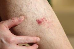 Die Wunde auf dem Bein des Mannes Lizenzfreie Stockfotos