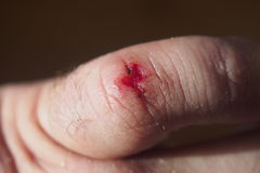 Die Wunde auf seinem kleinen Finger Stockfotos