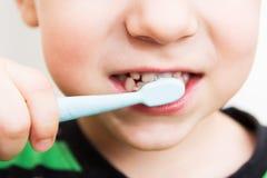 Die Zähne des Kindes mit einer Zahnbürste Stockbild