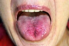Die Zunge ist rot, entflammt Hyperämie der Schleimhaut der Zunge lizenzfreie stockfotos