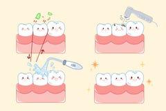 Diente con concepto dental Imagen de archivo