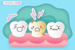 Diente con decaimiento del esmalte dental ilustración del vector