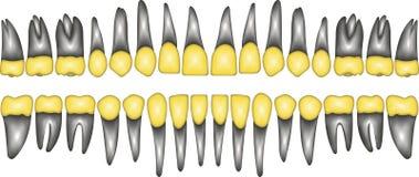 diente de la corona del oro 3D Imágenes de archivo libres de regalías