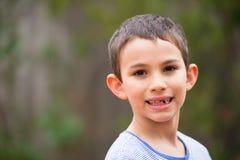 Diente de leche que falta del muchacho joven del retrato al aire libre fotos de archivo libres de regalías