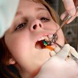 Diente dental del procedimiento, de la perforación y del relleno fotos de archivo libres de regalías