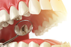 Diente humano con la carie, el agujero y las herramientas Concepto de búsqueda dental Fotos de archivo
