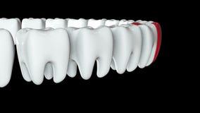 Diente rojo en fila de los dientes blancos 3d almacen de video