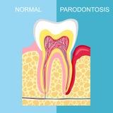 Diente sano y diente con enfermedad periodontal Anatomía de órganos humanos Enfermedad periodontal del diente Diente Periodont de ilustración del vector