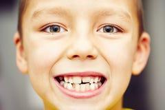 dientes foto de archivo
